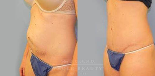 abdominoplasty-case-7-03