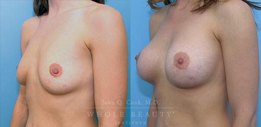breast-augmentation-case-07