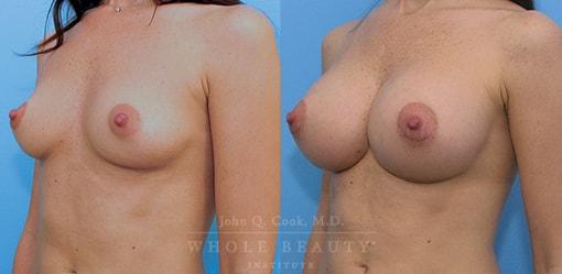 breast-augmentation-case-09