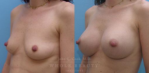 breast-augmentation-case-10