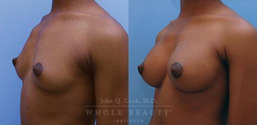 breast-augmentation-case-13