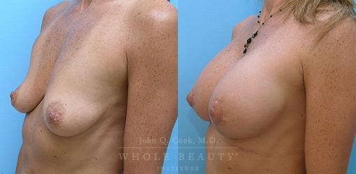 breast-augmentation-case-15