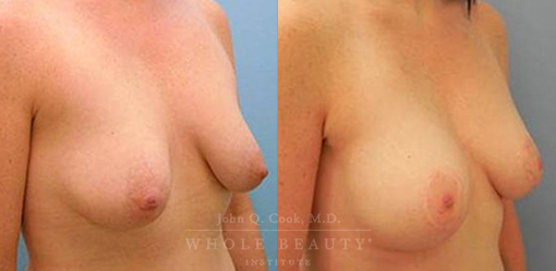 breast-augmentation-case-16-side