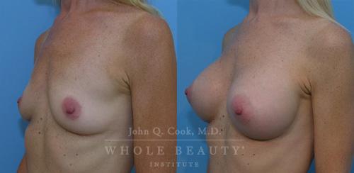 breast-augmentation-case-3-01