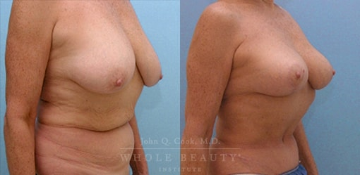 breast-lift-case-3-angled