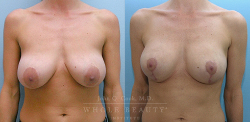 breast-lift-case-4-front