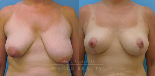 breast-reduction-case-02-fixed
