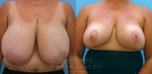 breast-reduction-case-03-fixed