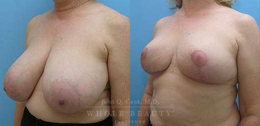 breast-reduction-case-05-fixed