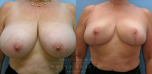 breast-reduction-case-06-angle-fixed