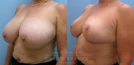 breast-reduction-case-06-fixed