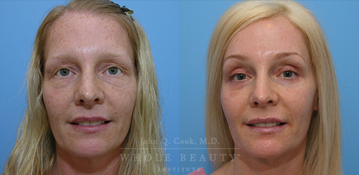 Eyelid Surgery & Brow Lift