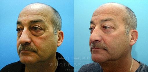 eyelid-surgery-browlift-case-02