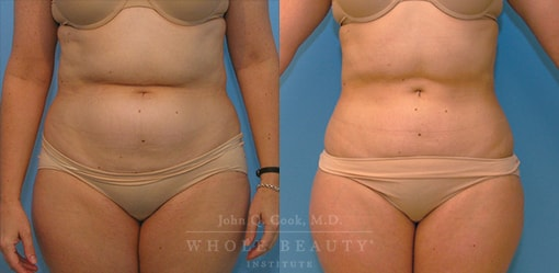 liposuction-case-2-01