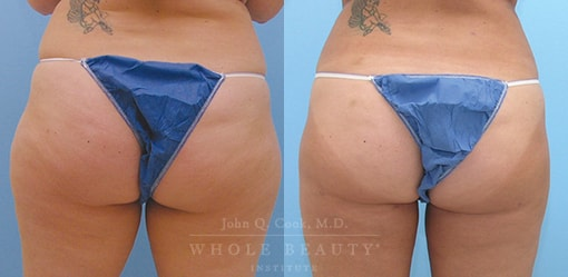 liposuction-case-3-03