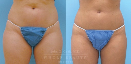 liposuction-case-3-01