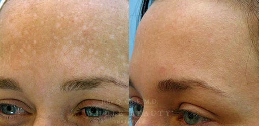 Melasma Treatments Before and After