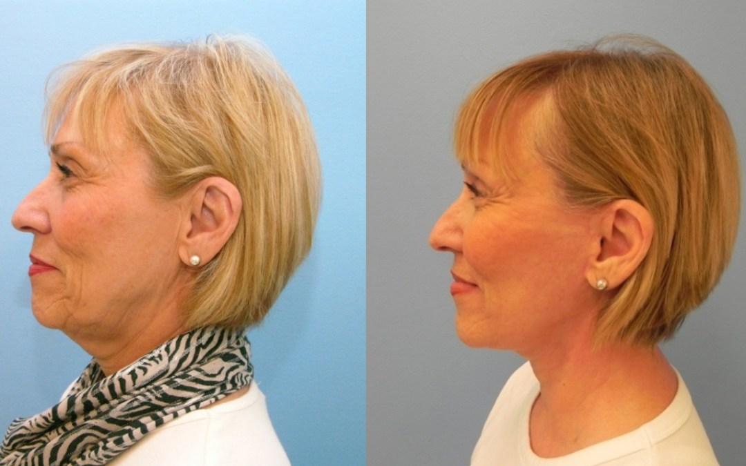 Various Neck Lift Surgery Techniques