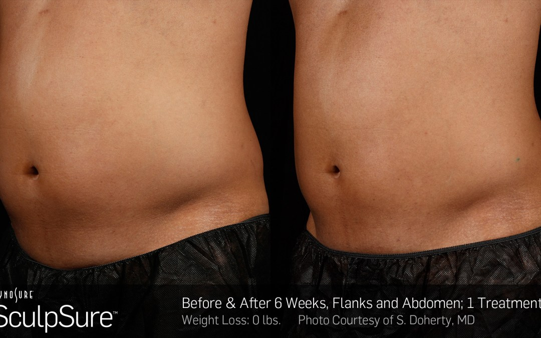 Sculpsure – Non-Surgical Fat Reduction