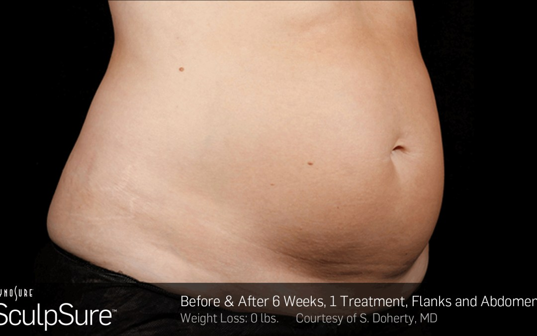 SculpSure Recovery