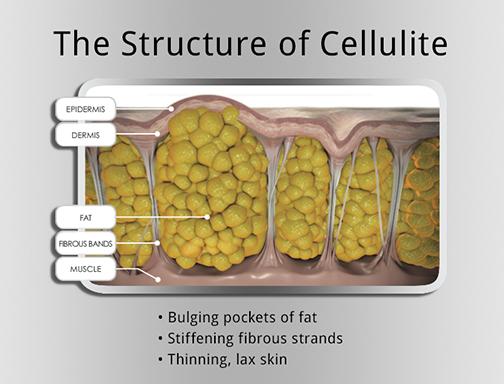 Cellulaze® Technology