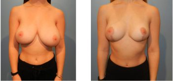 Structural breast reduction before and after.