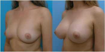 Natural looking breast augmntation before and after.