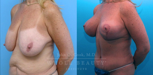 breast-lift-case-6-front