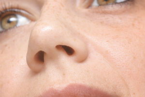 Nasal Valves