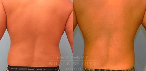 liposuction-case-5-04