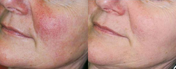 IPL reduction of Rosacea