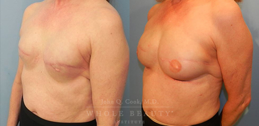 breast-reduction-case-09