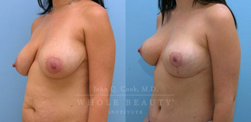 structural breast surgery patient