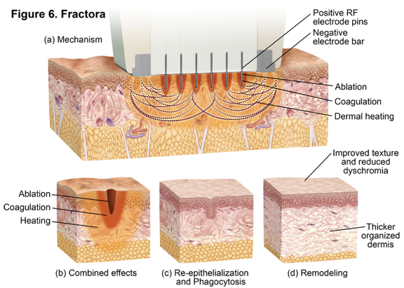 Fractora Treatment Illustration