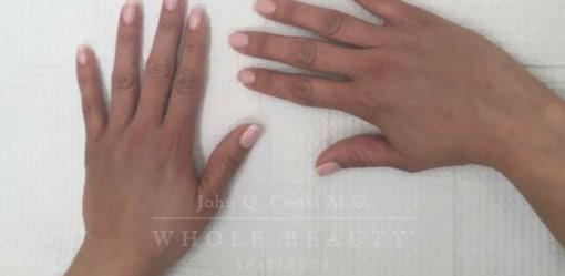 Hand Restoration