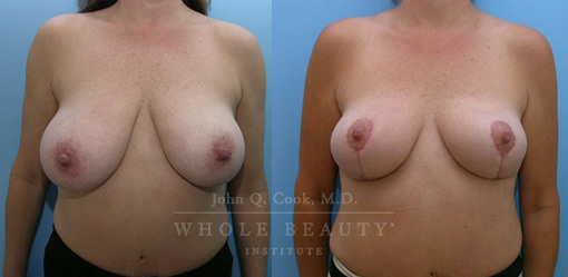 Structural Breast Reduction before and after