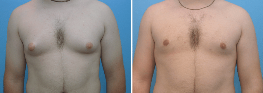 Breast Reduction for Men | Before and After