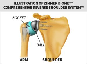 zimmer biomet shoulder replacement