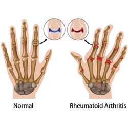 How Will You Know if You Have Finger Joint Pain