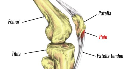 knee pain after exercises