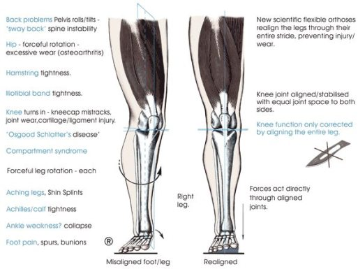 diagram hyperextended knees