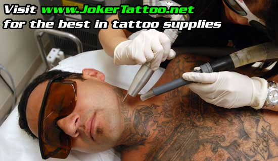 laser-tattoo-removal.jpg. There has been some controversy over this new