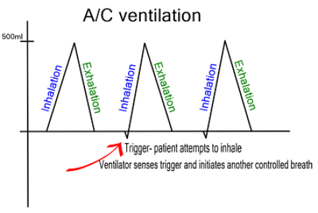 ac versus simv mode critical care practitioner