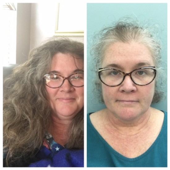 Oncology visit won't fix bad hair