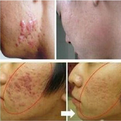 LANBENA-ginseng-extract-against-black-dots-cream-scar-removal-facial-blackhead-acne-skin-care-treatment-bleaching-1.jpg