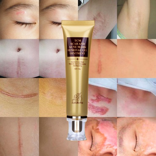 LANBENA-ginseng-extract-against-black-dots-cream-scar-removal-facial-blackhead-acne-skin-care-treatment-bleaching-2.jpg