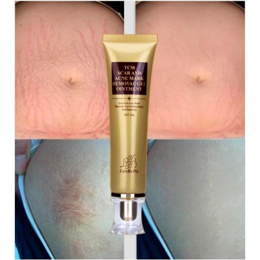 LANBENA-ginseng-extract-against-black-dots-cream-scar-removal-facial-blackhead-acne-skin-care-treatment-bleaching-4.jpg