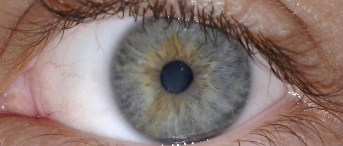 olho-cegueira-