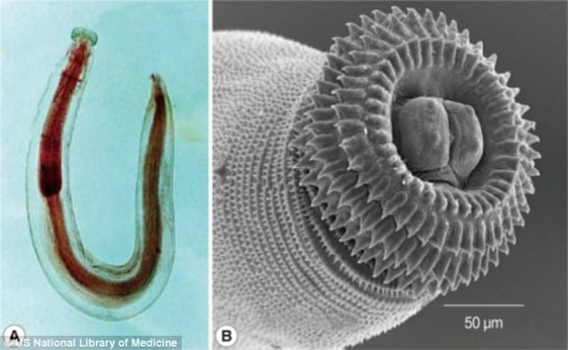 jovem-com-parasita-carnivoro_1