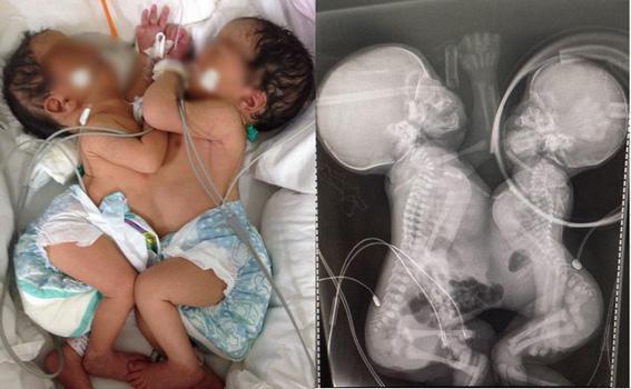 Segunda gêmea siamesa morre por falência múltipla dos órgãos